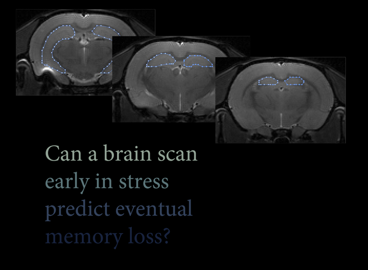Can a brain scan early in stress predict eventual memory loss?