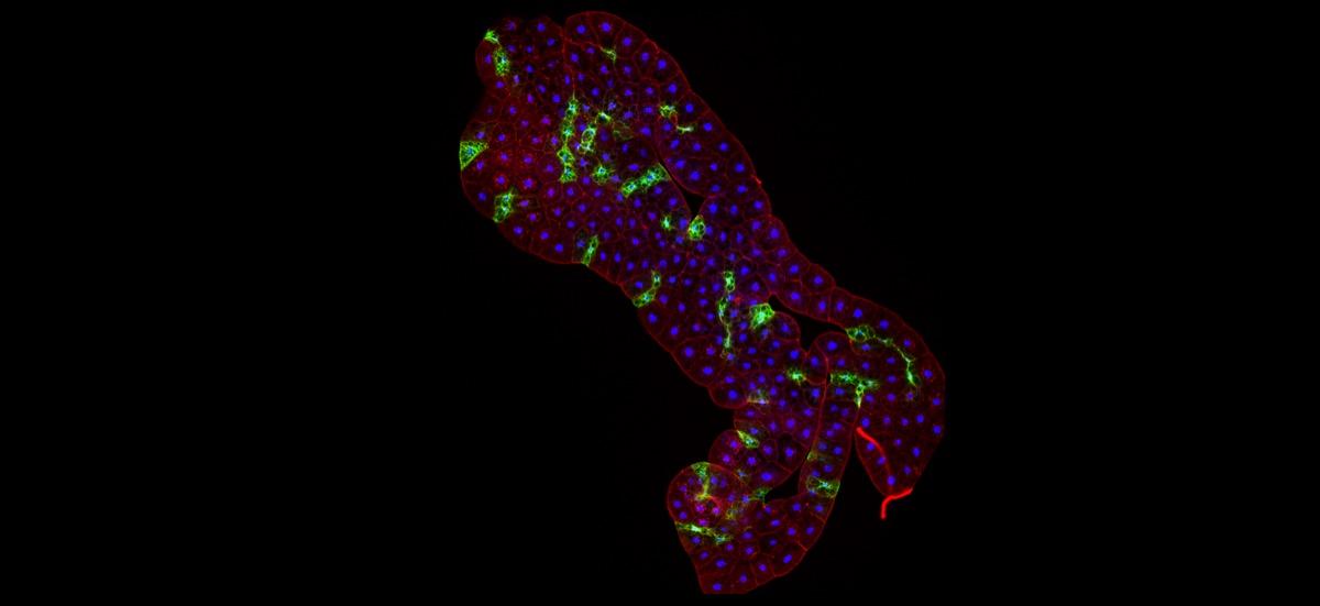 A molecular rheostat for insulin signalling
